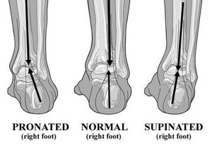 PronationFoot
